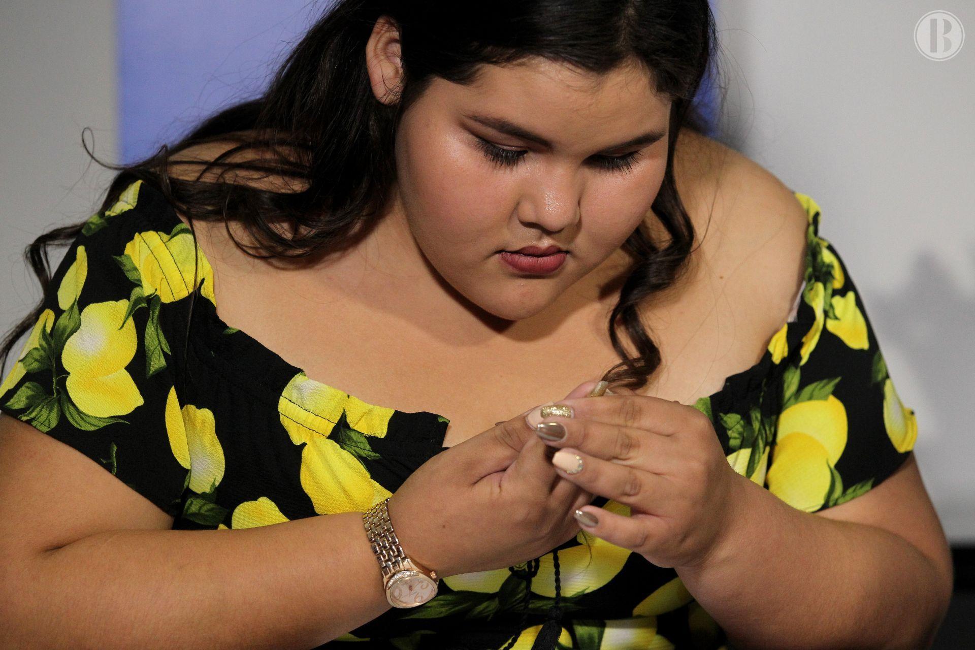 Obesidad mórbida en adolescentes acorta hasta 40 años la esperanza de vida